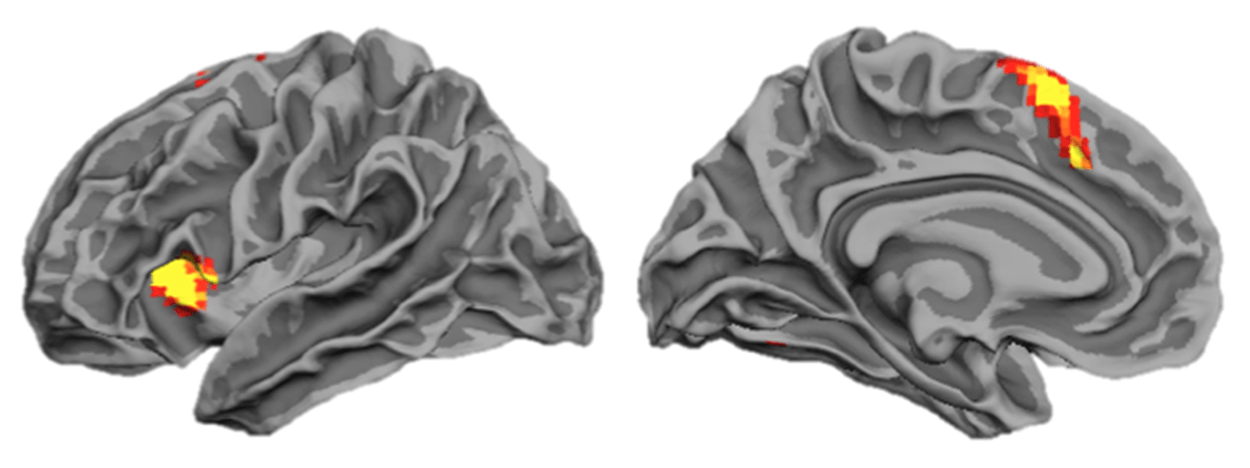 Brain scan of weak memory to illustrate how memory improvement and the Magnetic Memory Method Masterclass fails learners