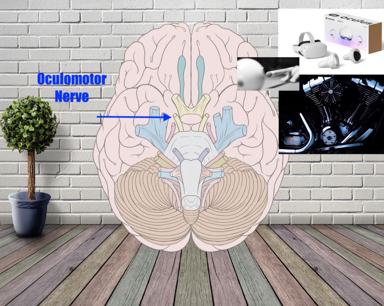 oculomotor nerve example