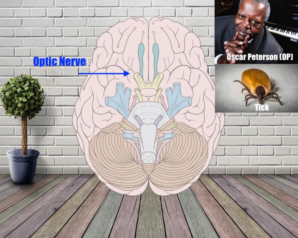 optical nerve mnemonic example