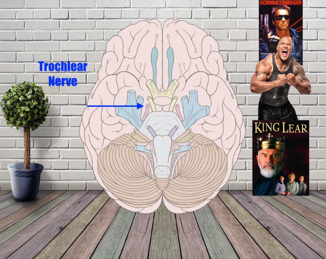 trochlear nerve mnemonic example