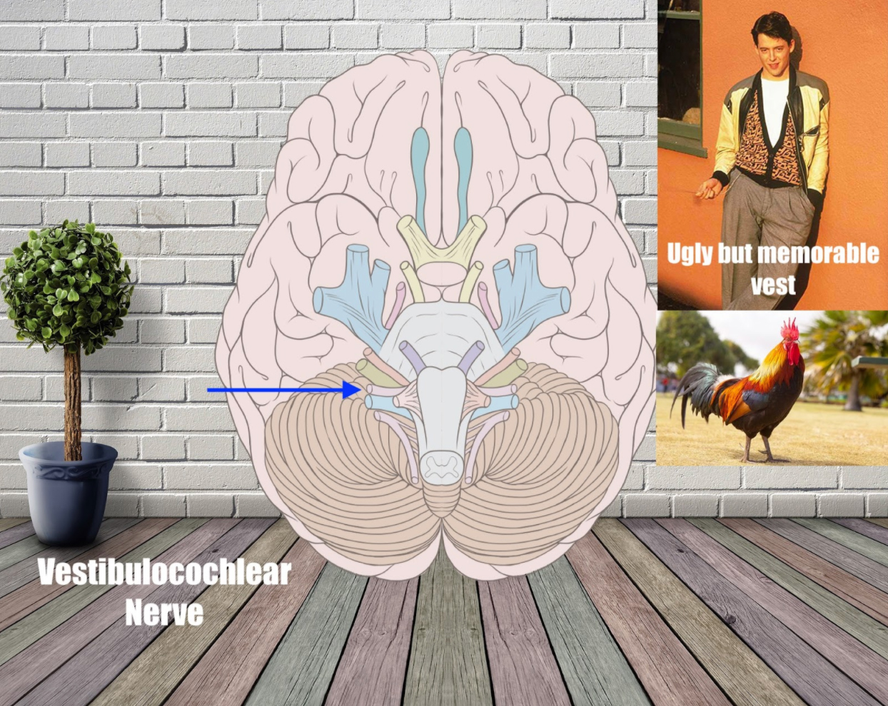 vestibulocochlear nerve mnemonic example